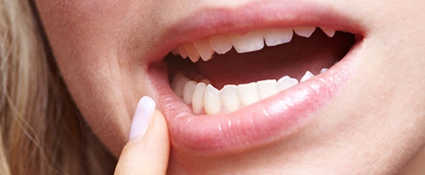 Freiliegende Zahnhälse